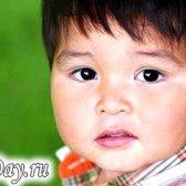 Діатез у дітей