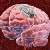 Рак головного мозку