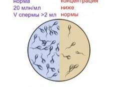 Астенозооспермія