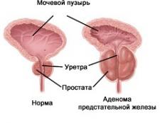 Доброякісна гіперплазія передміхурової залози