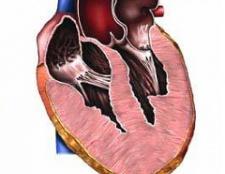 Гіпертрофія правого шлуночка