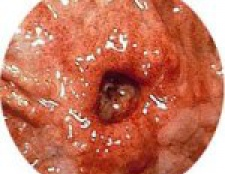 Виразка шлунка