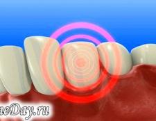Як лікувати зубний біль при вагітності