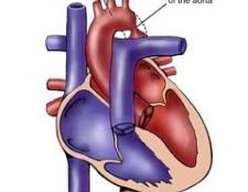 Коарктація аорти