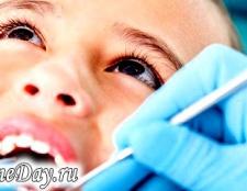 Коли у дітей випадають зуби