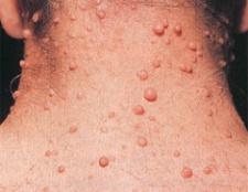 Нейрофіброматоз