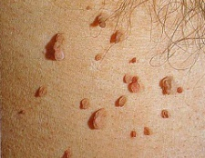 Папіломавірус людини