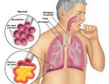Пневмонія