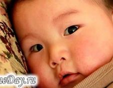 Пітниця у новонароджених
