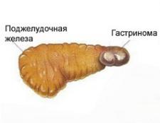 Синдром Золлінгера-Еллісона